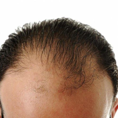 נשירת שיער גברים