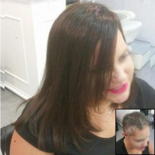 תוספות שיער לנשים עם…